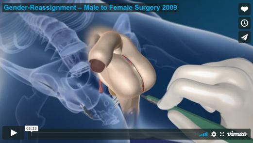 Die Geschlechtsangleichende Operation – GaOP – Mann-zu-Frau – Geschlechtsangleichung