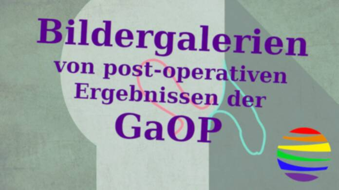 Post-Operation GaOP (Bilder)